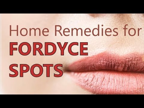 Top Effective Home Remedies for Fordyce Spots
