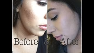 How I Got Rid Of Tiny Face Bumps Current Skin Care Routine