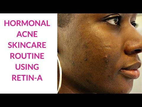 My Hormonal Acne Skincare Routine Using Retin-A