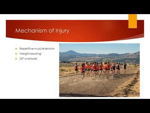 Lower Leg Stress Fracture