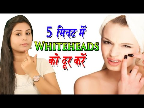 5 मिनट में वाइटहेड्स को दूर करे Remedies For Whiteheads Removal | How To Get Rid Of Whiteheads