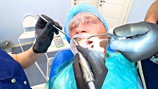 Лечение зубов в клинике доктора Алексенберга в Москве || Консультация, процесс и стоимость лечения
