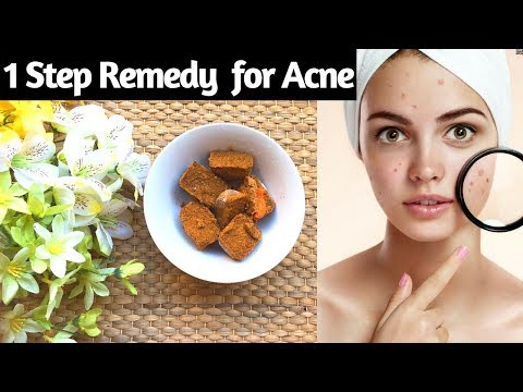 Home made Ice cubes remedy for acne / pimples in Hindi I skin care I Acne free face I AVNI