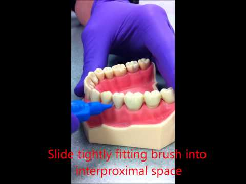 Using Interdental-cleaning aids