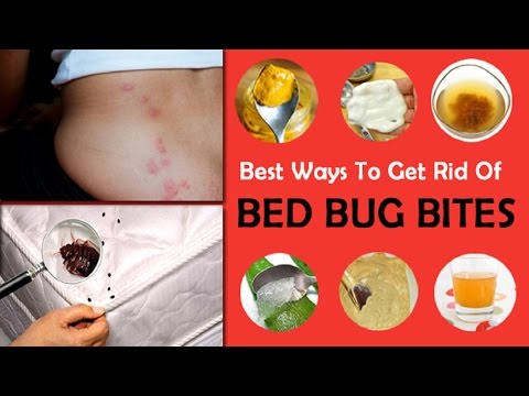 How to Treat Bed Bug Bites With Home Remedy.