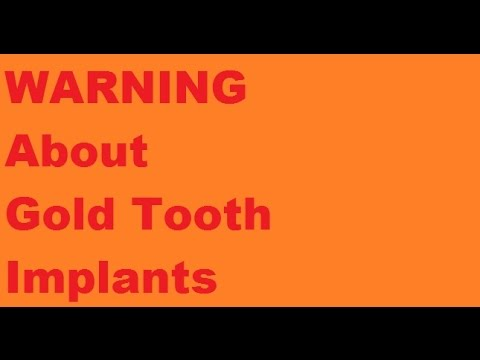 Gold Tooth Implant Secret Problems