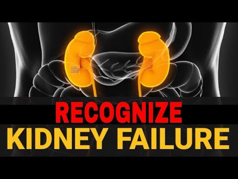 Do You Know If Your KIDNEY is FAILING? [Must WATCH] For Any Person With KIDNEY DISEASES.
