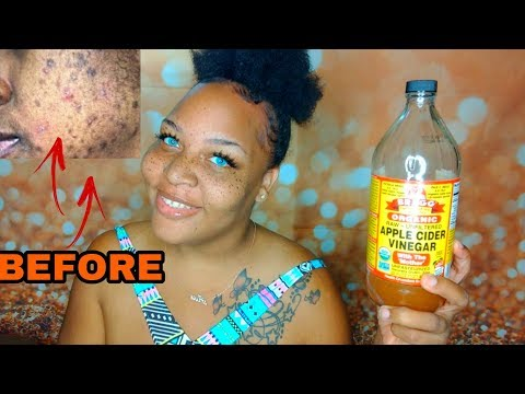 CLEARING ACNE WITH APPLE CIDER VINEGAR