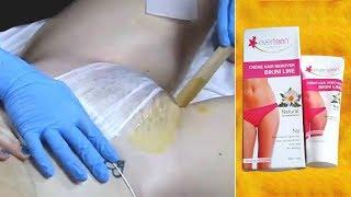 5 मिनट में प्राइवेट पार्ट के अनचाहे बाल जड़ से हटाइये Remove Unwanted Hair Bikini Line Hair Removal