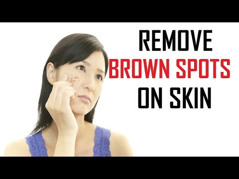 Top 15 Ways To Remove Brown Spots On Skin