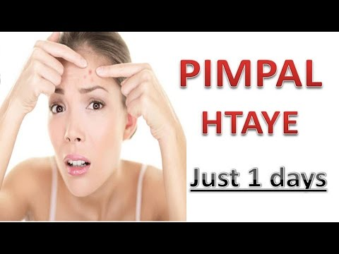 Pimple Treatment At Home For Man And Women|Pimpal Htaye In Hindi And Urdu