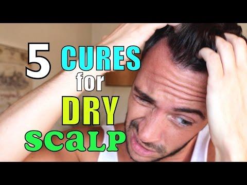 HOW I GOT RID OF DANDRUFF & DRY SCALP | 5 Natural Home Remedies | Cheap Tip #231