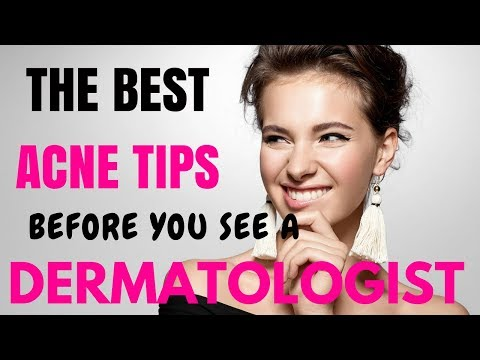 SKIN CARE TIPS-  Treating ACNE