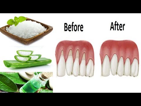 Gum Disease Treatment at Home with Natural Remedies