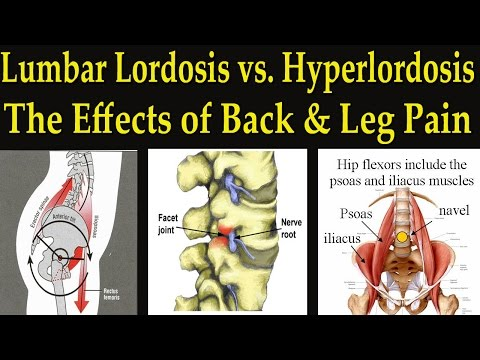 Lumbar Lordosis vs Hyperlordosis / Facet Joint Syndrome Causing Back and Leg Pain - Dr Mandell