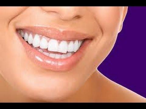 {#184} Teeth whitening Procedure ~Carbamide Peroxide~