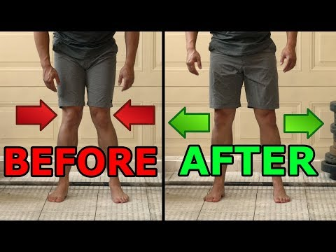 5 Ways To  Fix Knocked Knees | Tight Inner Thighs