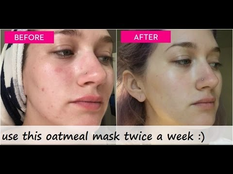 how to get rid of acne in 1 hour naturally with DIY face mask for pimples