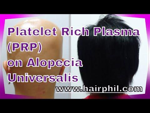 Platelet Rich Plasma on Alopecia Universalis