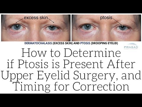 How to Determine if Eyelid Ptosis is Present After Upper Blepharoplasty, and Timing for Correction