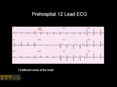12-15 Lead ECG: The 12 Leads