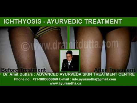 Ichthyosis Best Ayurvedic Treatment in Brampton, Canada at AYUR SUDHA