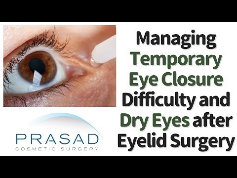 Possible Causes of Dryness and Incomplete Eye Closure after Eyelid Surgery