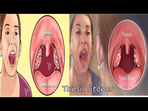 Big TONSIL Stones Removal at home - Removing Tonsil Stones Easily And Effectively V 4 YOU