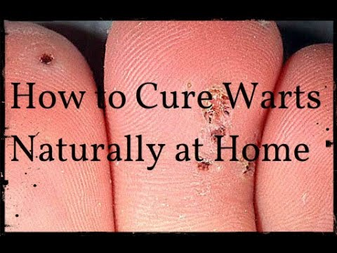 How to Cure Warts Naturally at Home