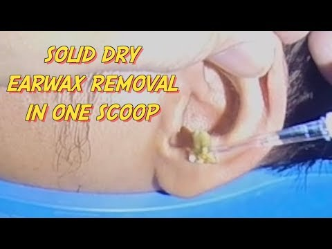 Solid Dry Earwax Removal in One Scoop