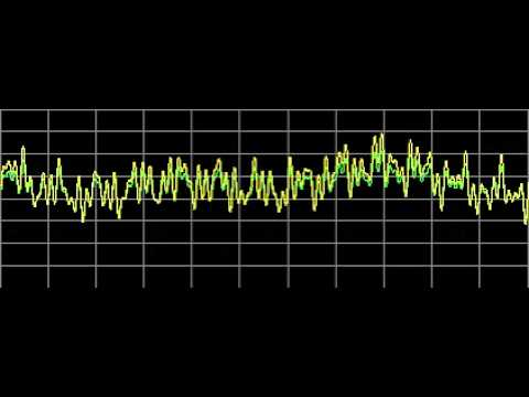 Multiple Myeloma - Rife Frequencies