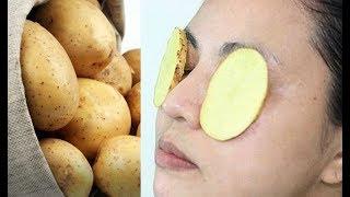 #x202b;هل تعلم ماذا يحدث لك عندما تضع البطاطس على العيون ؟#x202c;lrm;