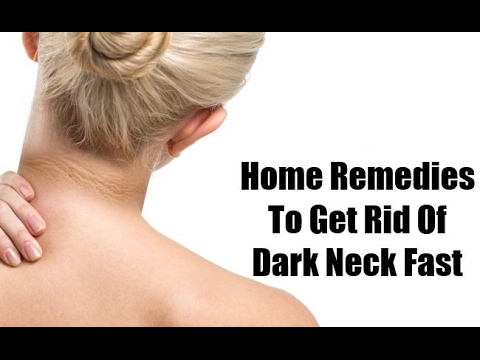 Get Rid of DARK SKIN on your NECK