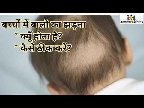 बच्चों के बालों का झड़ना   Hair Loss in Babies - Reason and Solution