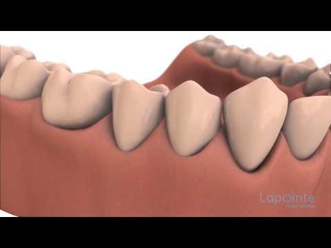 Bleeding gums - Lapointe dental centres