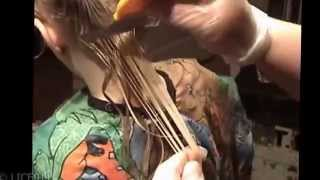 How To Get Rid Of Head Lice Quickly And Without Chemicals Natural Lic