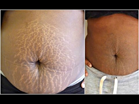 THIS POWERFUL TREATMENT  WILL GET RID OF  STRETCH MARKS IN 30 DAYS |  AMAZING FAST  RESULTS
