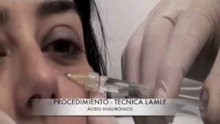 Eliminar-corregir ojeras con ácido hialurónico   Técnica LAMLE - Dr. Guilarte