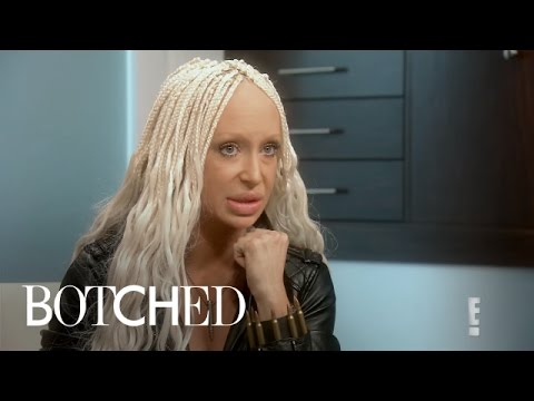 Botched | Did Woman Get Sheep's Fat Injected in Lips?! | E!