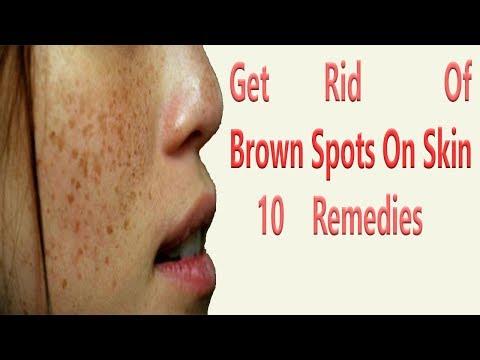 Get Rid Of Brown Spots On Skin 10 Remedies
