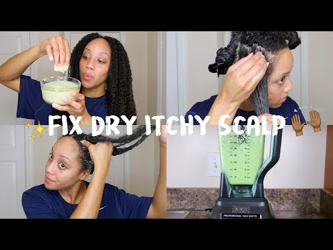 DIY Hair Mask for Dry Hair   GET RID OF Dry, Itchy Scalp