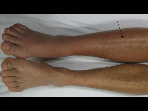 How to deal with deep vein thrombosis DVT | Deep vein thrombosis treatment