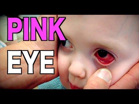 PINK EYE: Live Diagnosis (Conjunctivitis) | Dr. Paul