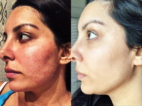 HOW I GOT RID OF ACNE SCARS   Microneedling Experience