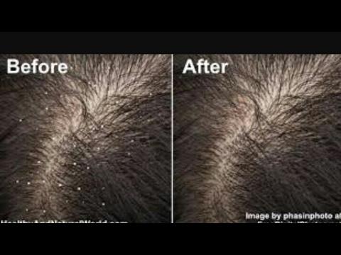 Kannada clear your  dandruff  in one wash . how to remove  dandruff