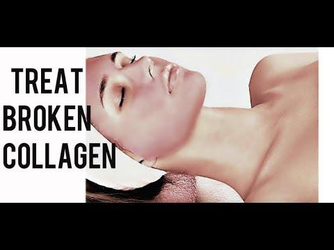 How to treat BROKEN COLLAGEN in your Skin