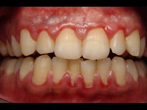 Home remedies to reduce gum swelling | how to reduce gum swelling