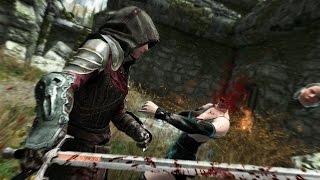 Skyrim Special Edition Xbox One: Part 35 – Frida the Lioness B | Daikhlo