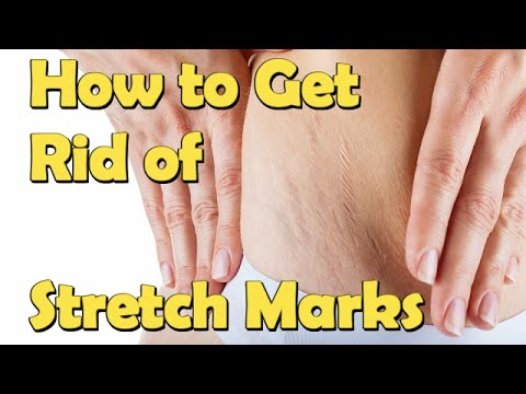 How to Get Rid of Stretch Marks For Teenagers Fast At Home