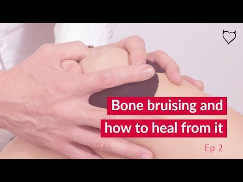 How to recover quickly from a bruised bone